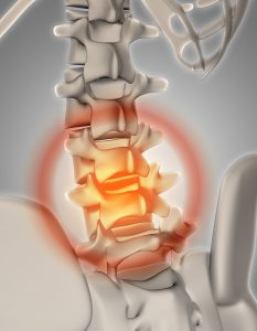 3D render of a skeleton with spine highlighted showing pain